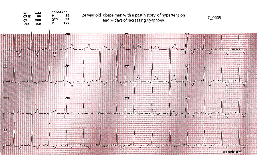 Figure 1 - ECG