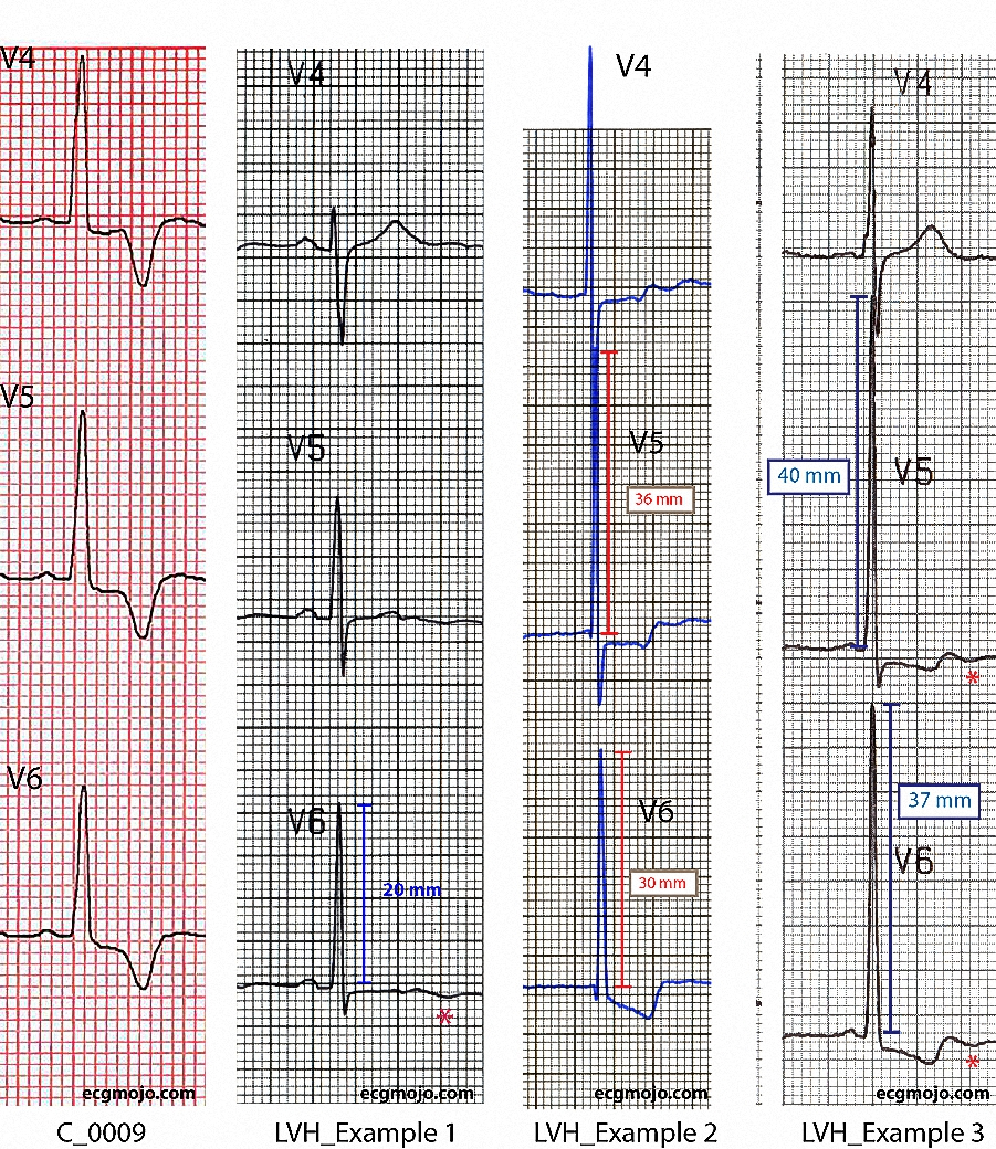 Figure 8 - Comparison of the changes in Leads V4 to V6 in a case of apical hypertrophic cardiomyopathy and in three examples of left ventricular hypertrophy