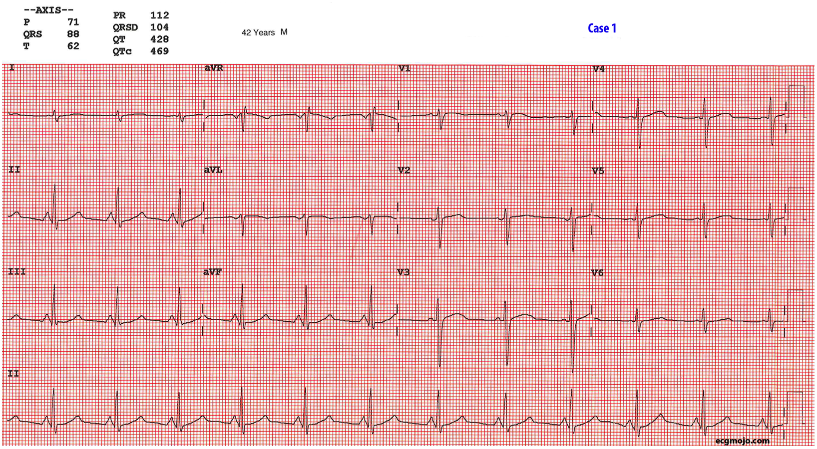Figure 7: This is ECG of a 42 year olds homeless man with a severe psychosis
