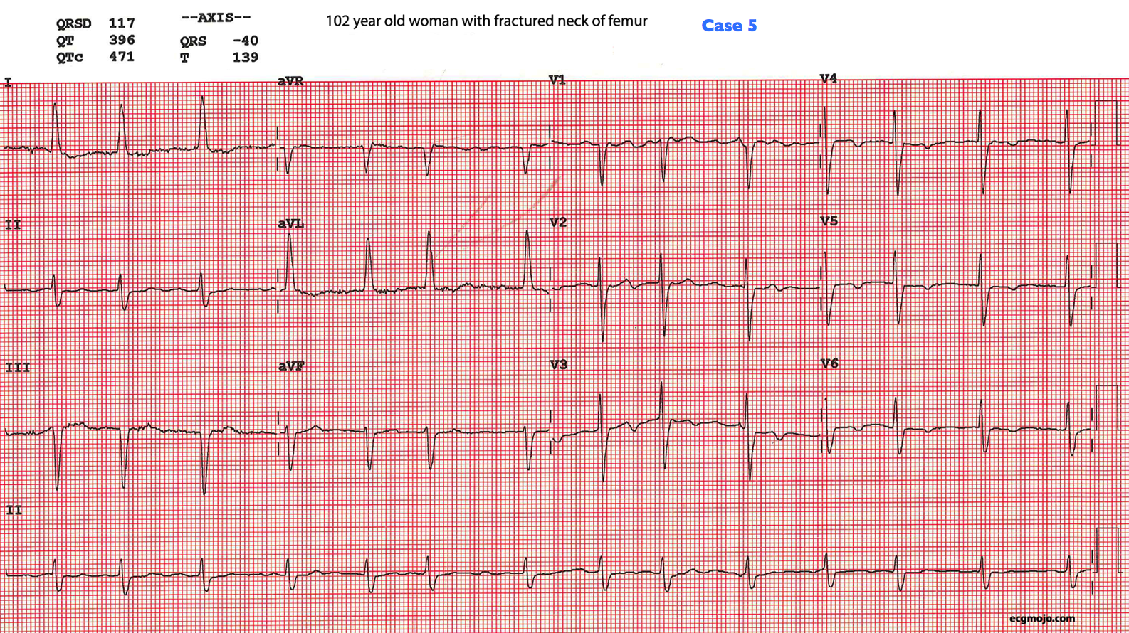 Figure 11: This is the ECG of a 102 year old woman with a fractured neck of femur