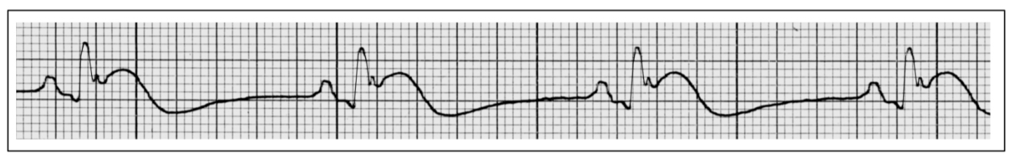 Describe the changes in this rhythm strip from a 62 year old man with chest pain