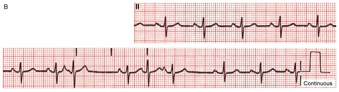 These two rhythm strips were recorded two days apart from a 67 year old man with recurrent palpitations. Describe the atrial rhythm(s)