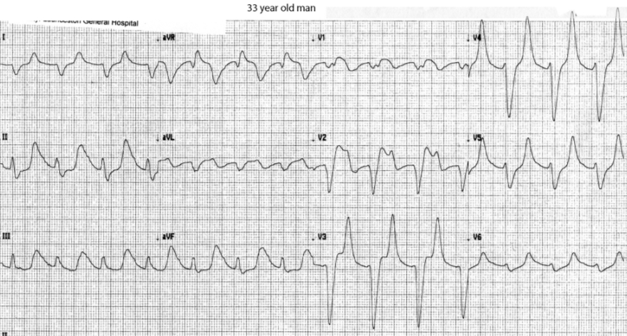 This ECG of a life threatening pattern* was provided by Dr Alfredo Mori