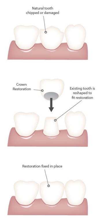 crowns boutique dental bondi.jpg