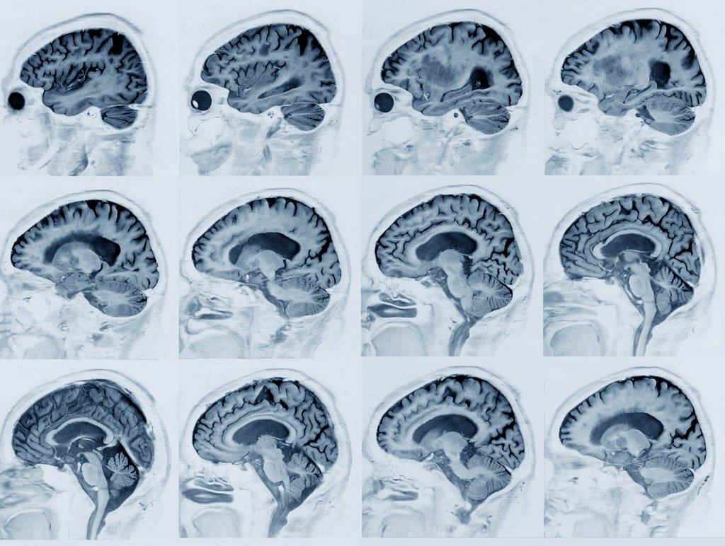 Image showing the various levels of plaque accumulation of beta amyloid within brains. Alzheimer's patients have particularly high, progressing levels of accumulation believed to contribute to loss of function. Image courtesy of Zephyr/Science Source