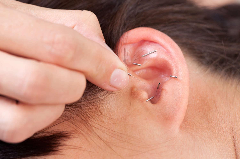 Ohrakupunktur  In Ruhe und Entspannung inneren Prozessen lauschen