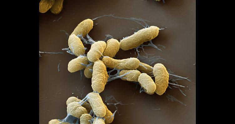 Plague (Yersinia pestis) Bacteria