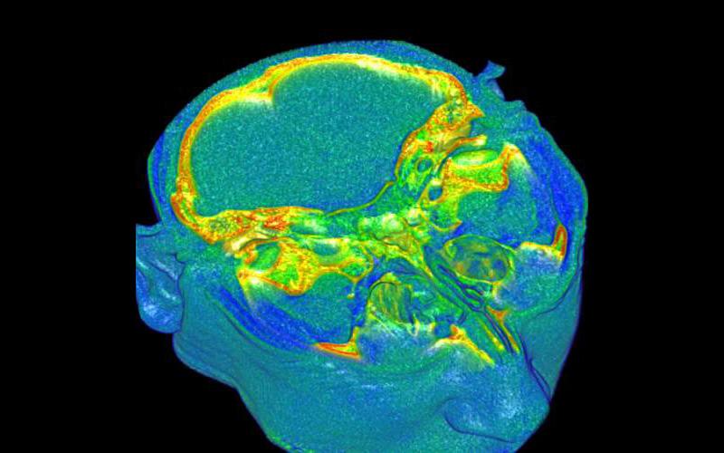 MRIs (axial)