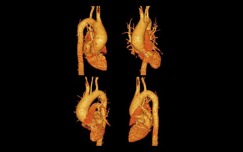 3D CT Scans