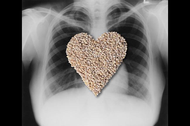 Heart Healthy - JA7954 ©Gwen Shockey/Science Source