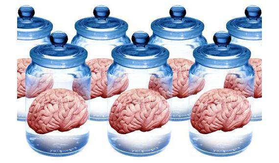 Preserved brains, artwork - SK7929 ©Victor de Schwanberg/Science Source
