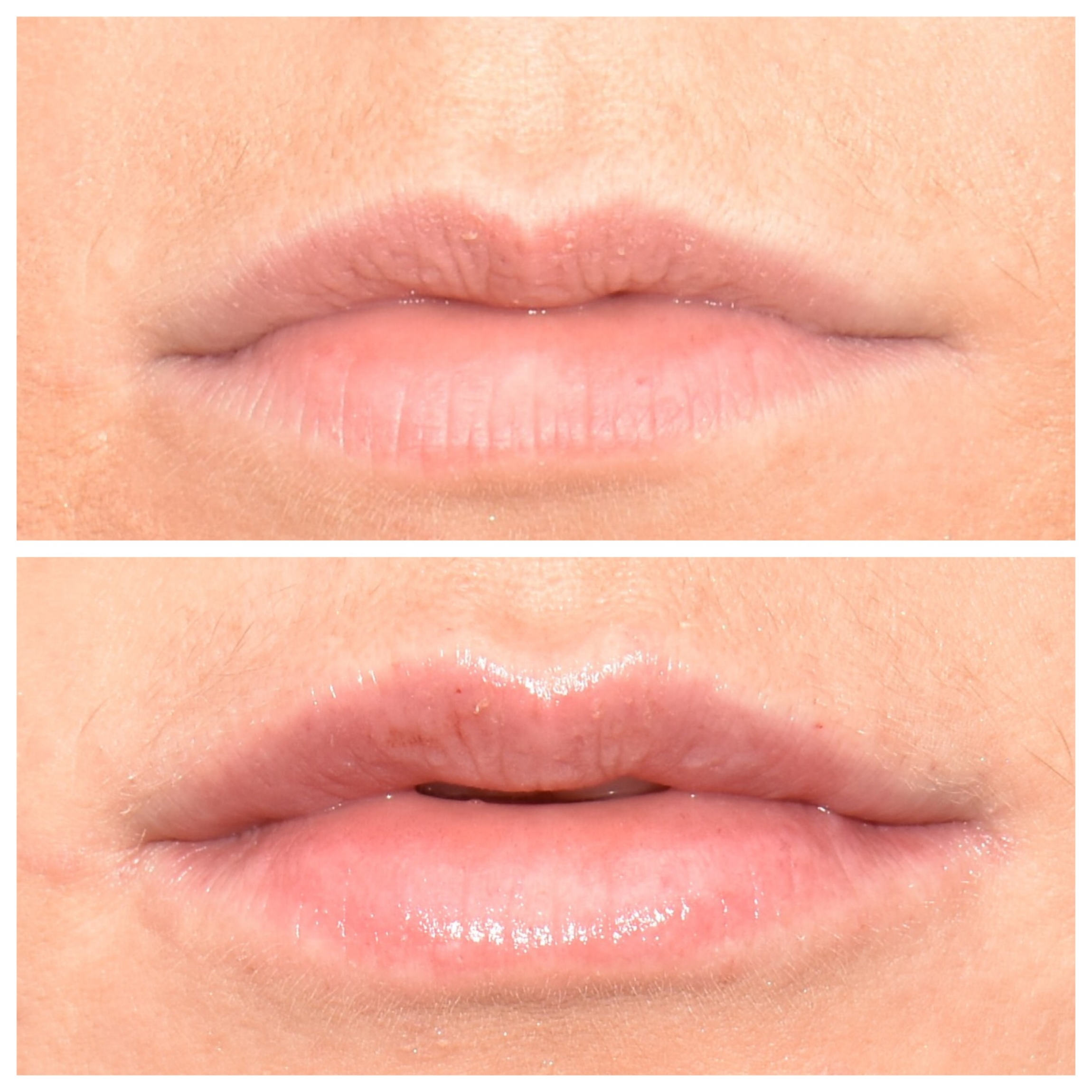 After 1ml lip filler