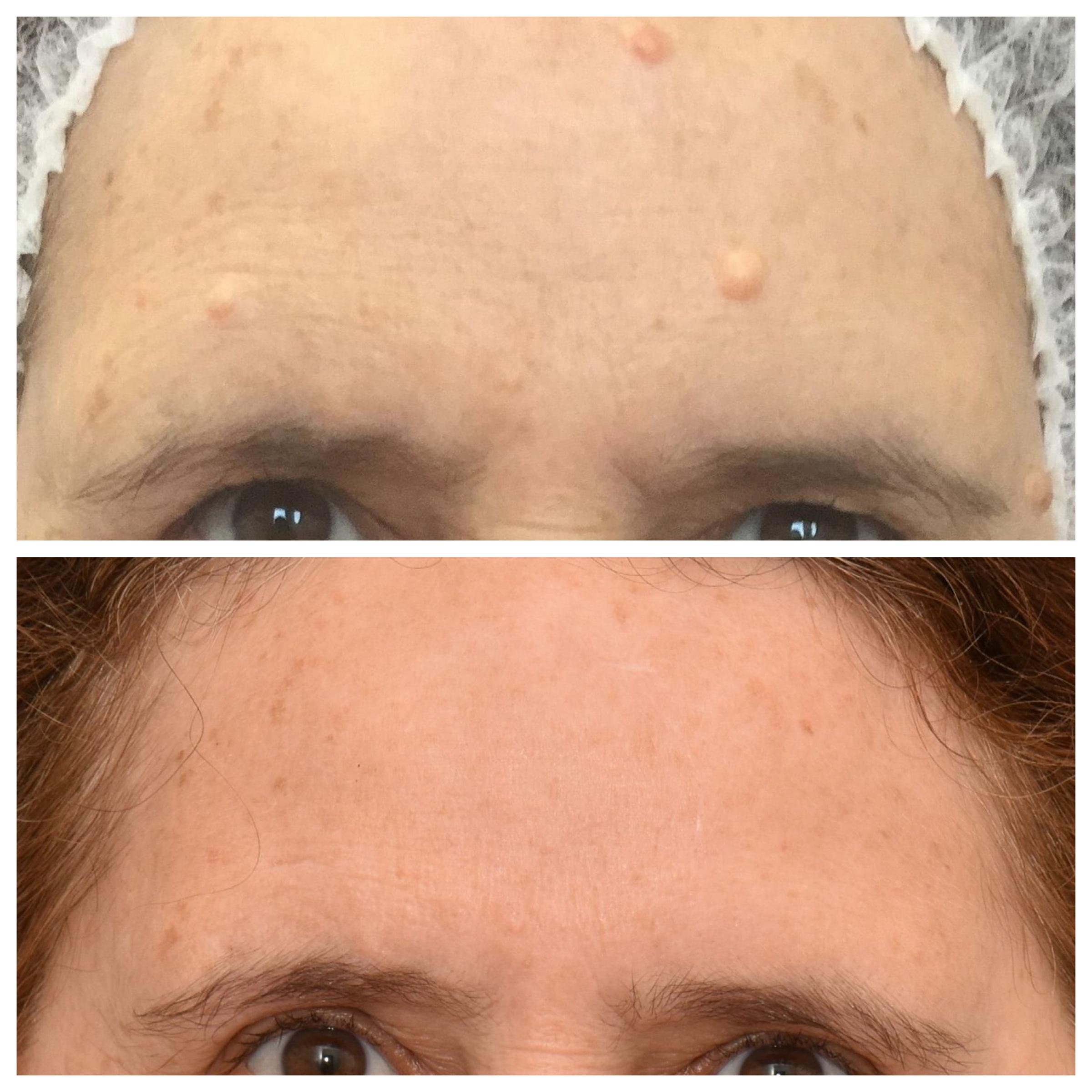 Mole Skin Tag Wart Removal Northern Skin Studio