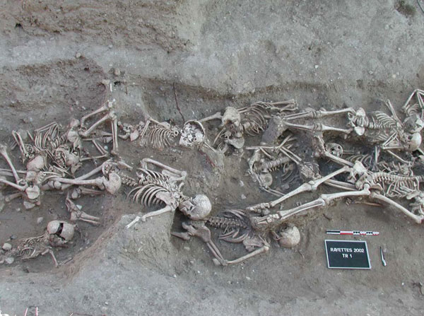 Human remains have been instrumental in discovering the microbiological causes of ancient disease.   S. Tzortzis/Wikimedia Commons  (public domain)