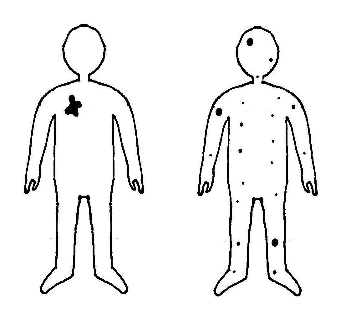 While a cancer remains benign (left), it can be removed using surgery or shrunk using radiation therapy. Once a cancer has metastasised however (right), cancer cells may be anywhere throughout the body and is therefore much more difficult to treat.