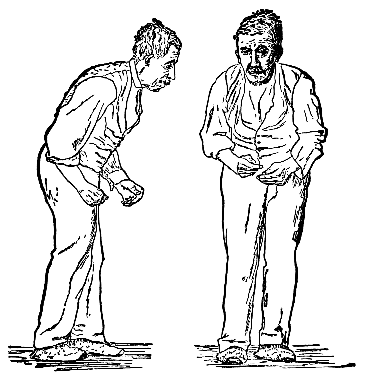 A 19th century illustration of a patient with Parkinson's disease.   William Richard Gowers, after Paul de Saint-Leger/Wikimedia Commons  (public domain)