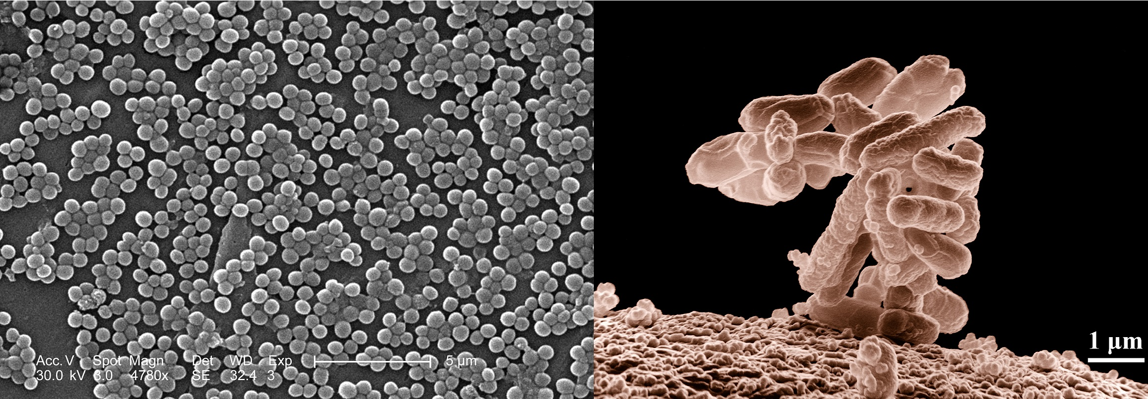 Although bacteria such as  S. aureus  (left) and  E. coli  (right) cause serious disease, humans co-exist quite happily with them   most of the time.    CDC, Janice Carr, Deepak Mandhalapu/Wikimedia Commons .(public domain); Eric Erbe, Christopher Pooley/Wikimedia Commons  (public domain)