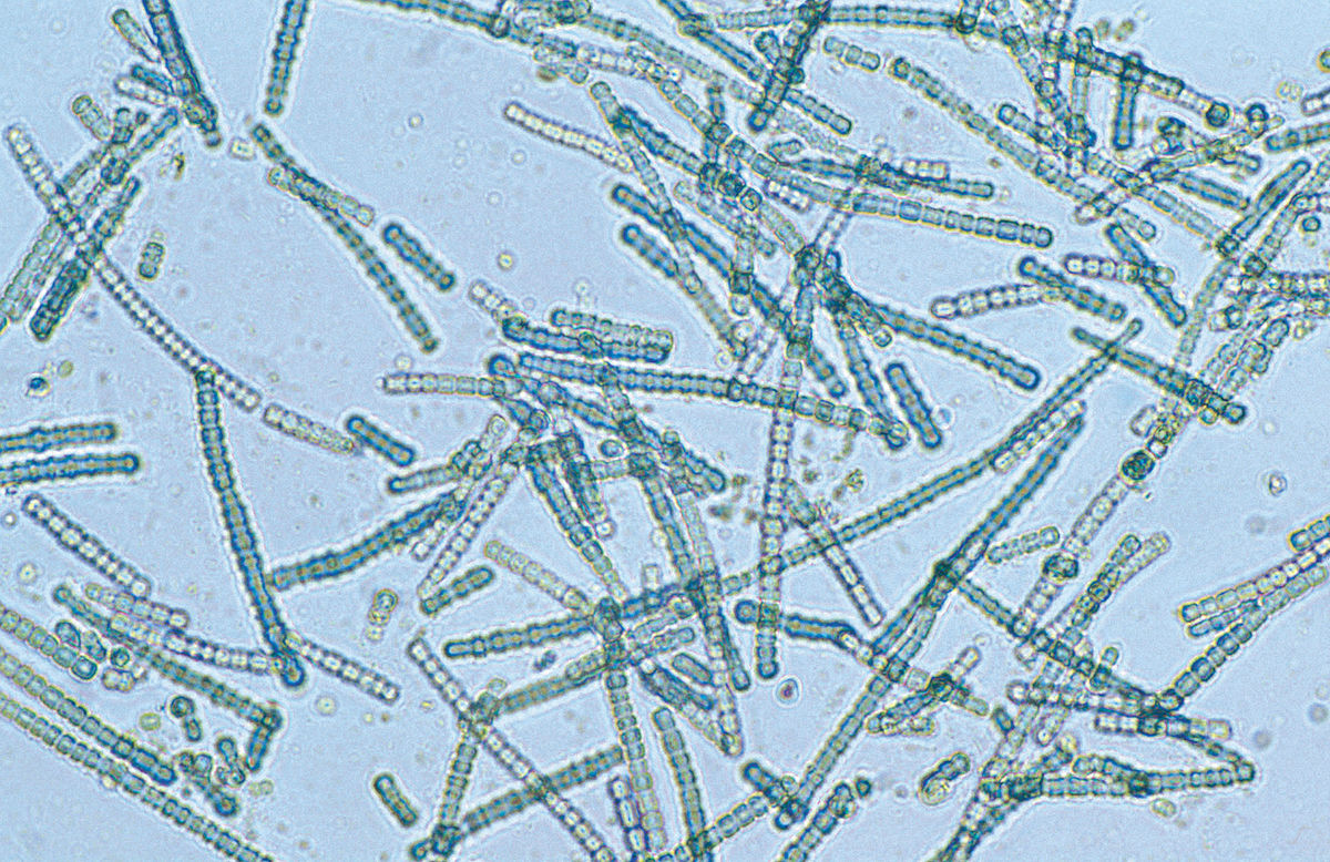 A species of cyanobacteria viewed under a light microscope - Could we use these microbes to harness photosynthesis directly for the synthesis of high-value molecules? Willem van Aken,   CSIRO/Wikimedia Commons (CC-BY-3.0).