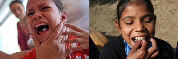 These two photos tell a dramatically different story about deworming. Guess which one the media likes?