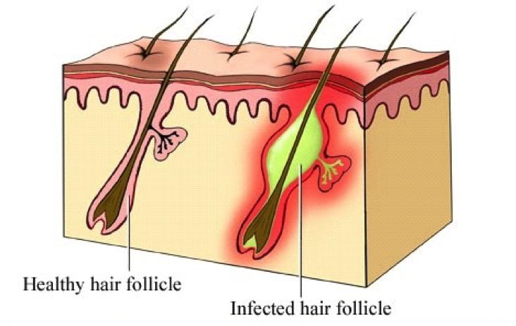 ingrown Hairs Diagram