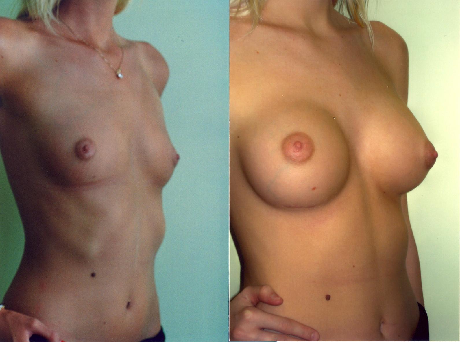 BreastAugmentation1.jpg