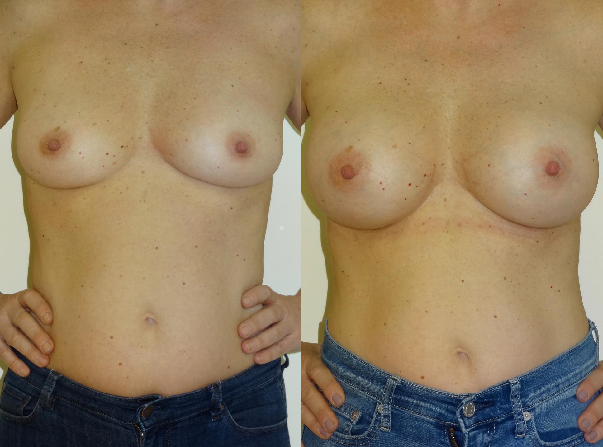 breast1.jpg