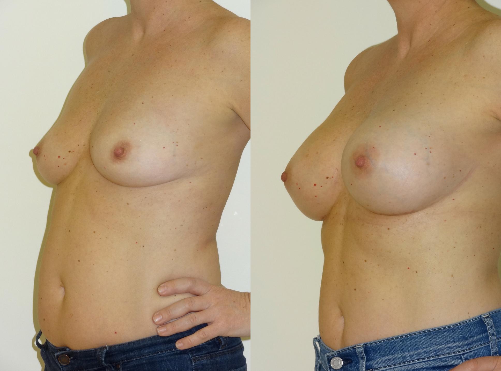 breast3.jpg