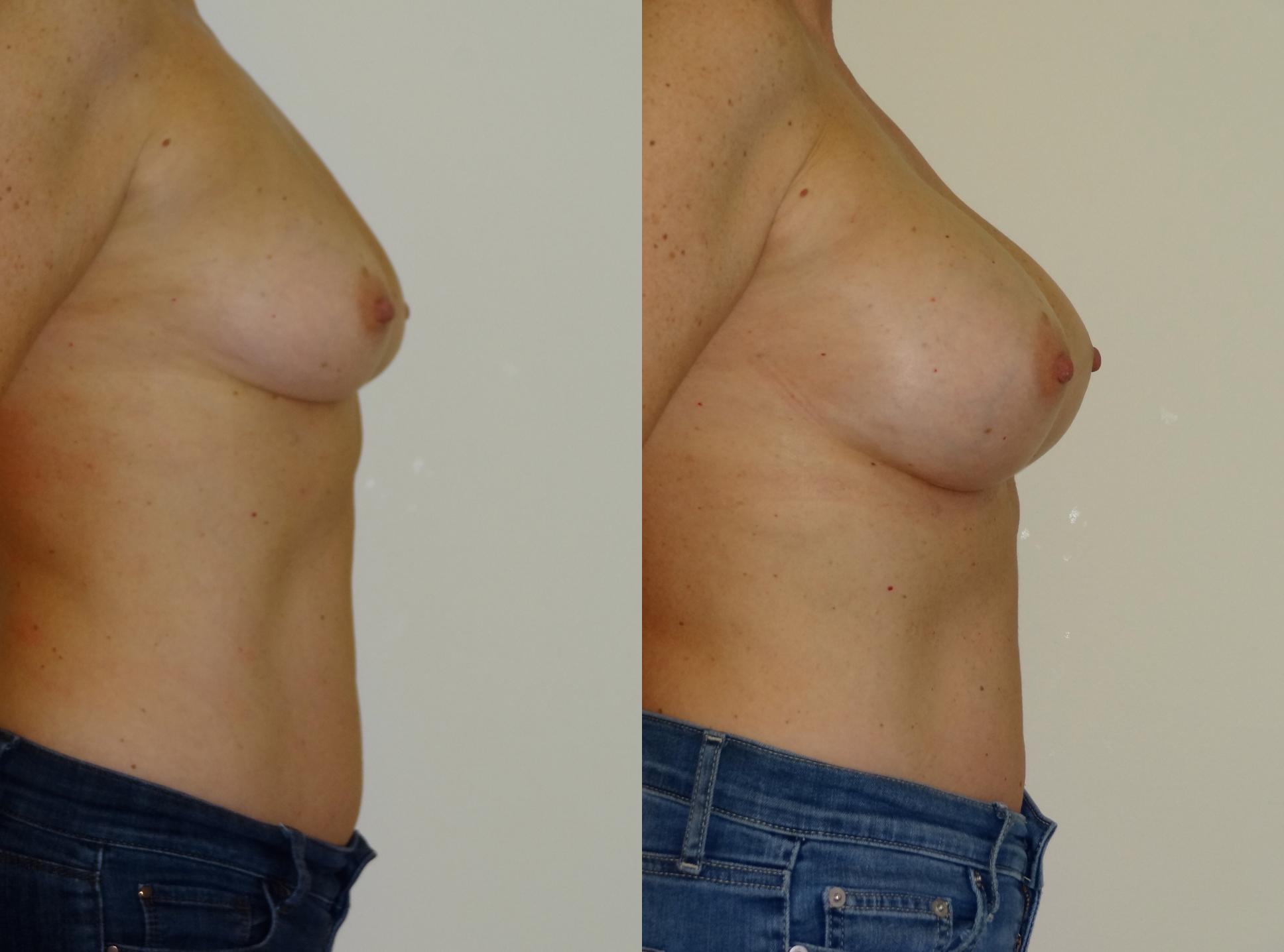 breast4.jpg