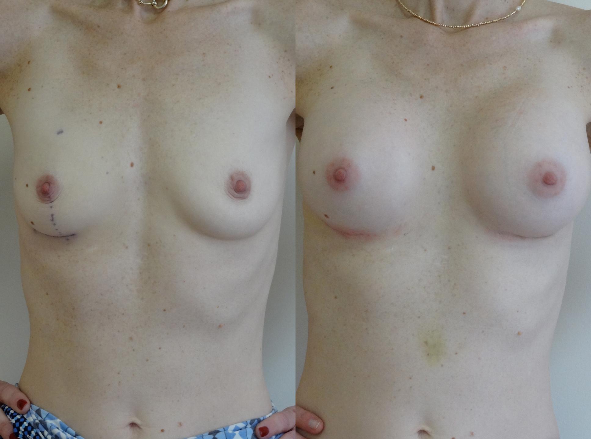 breast6.jpg
