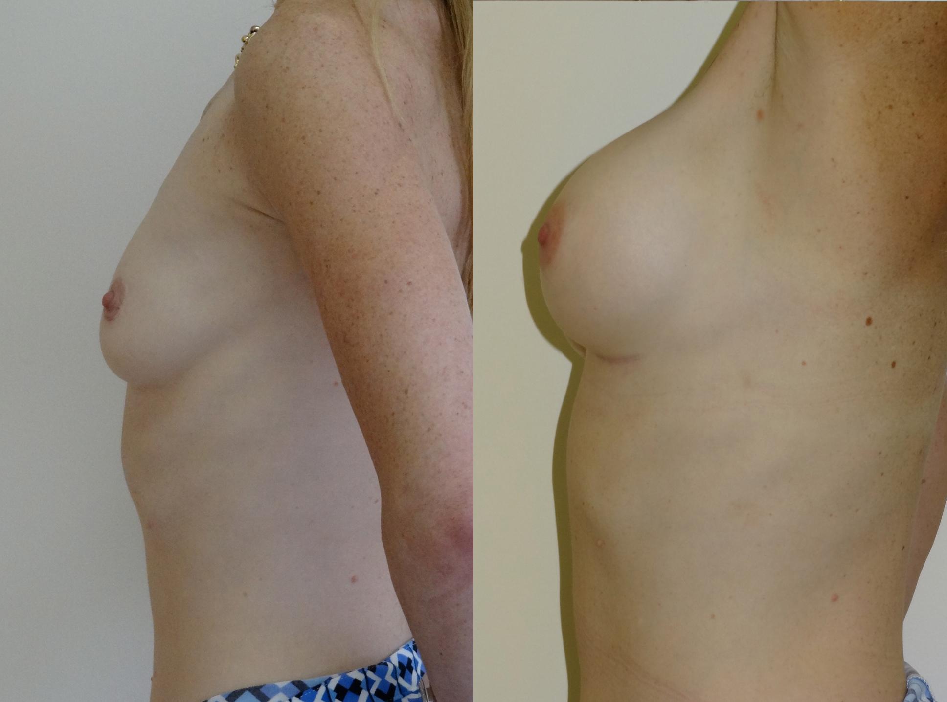 breast7.jpg