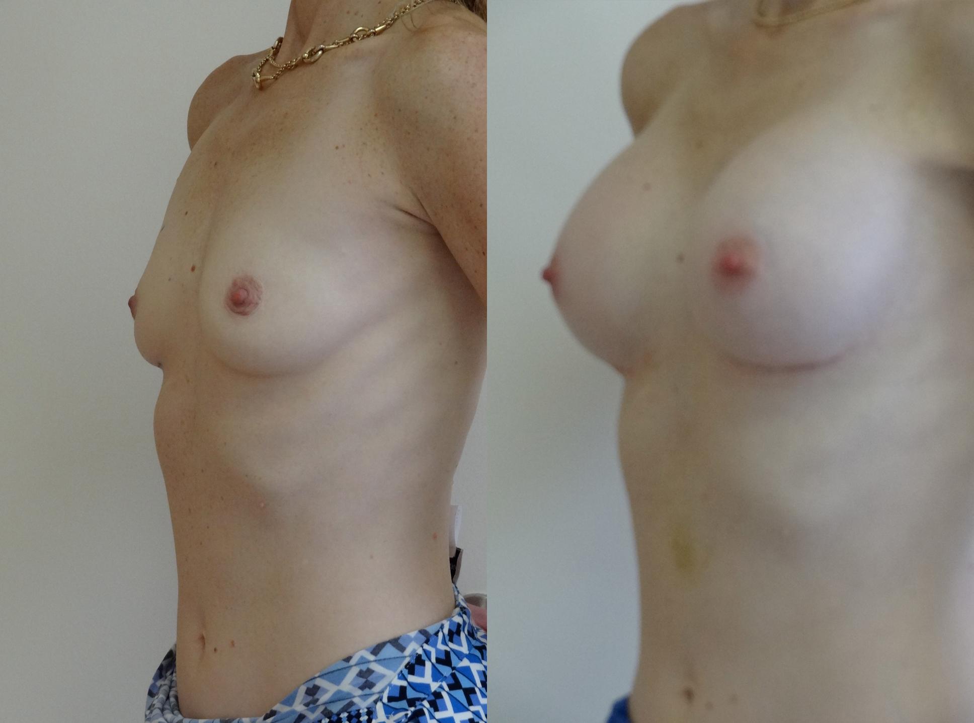 breast8.jpg