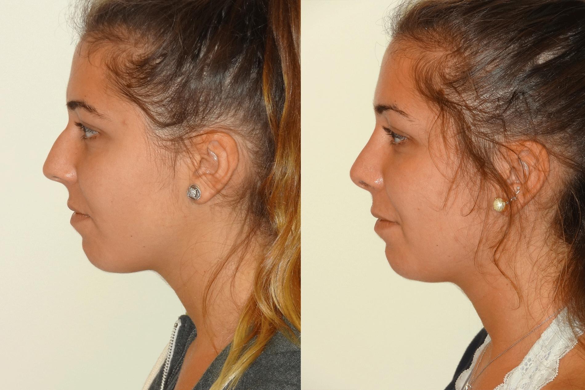 Nose6_Left.jpg