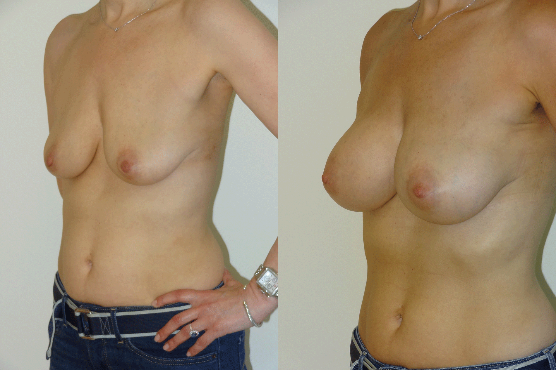 BeforeAfterKhouryBreast819LeftAngle.png