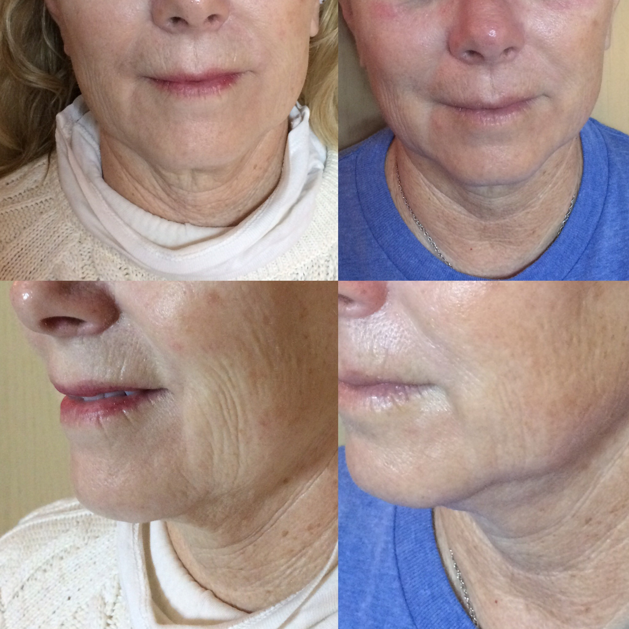 This client had a series of 10 TAMA microcurrent treatments spaced one week apart and used Osmosis skincare for her home care regimen.