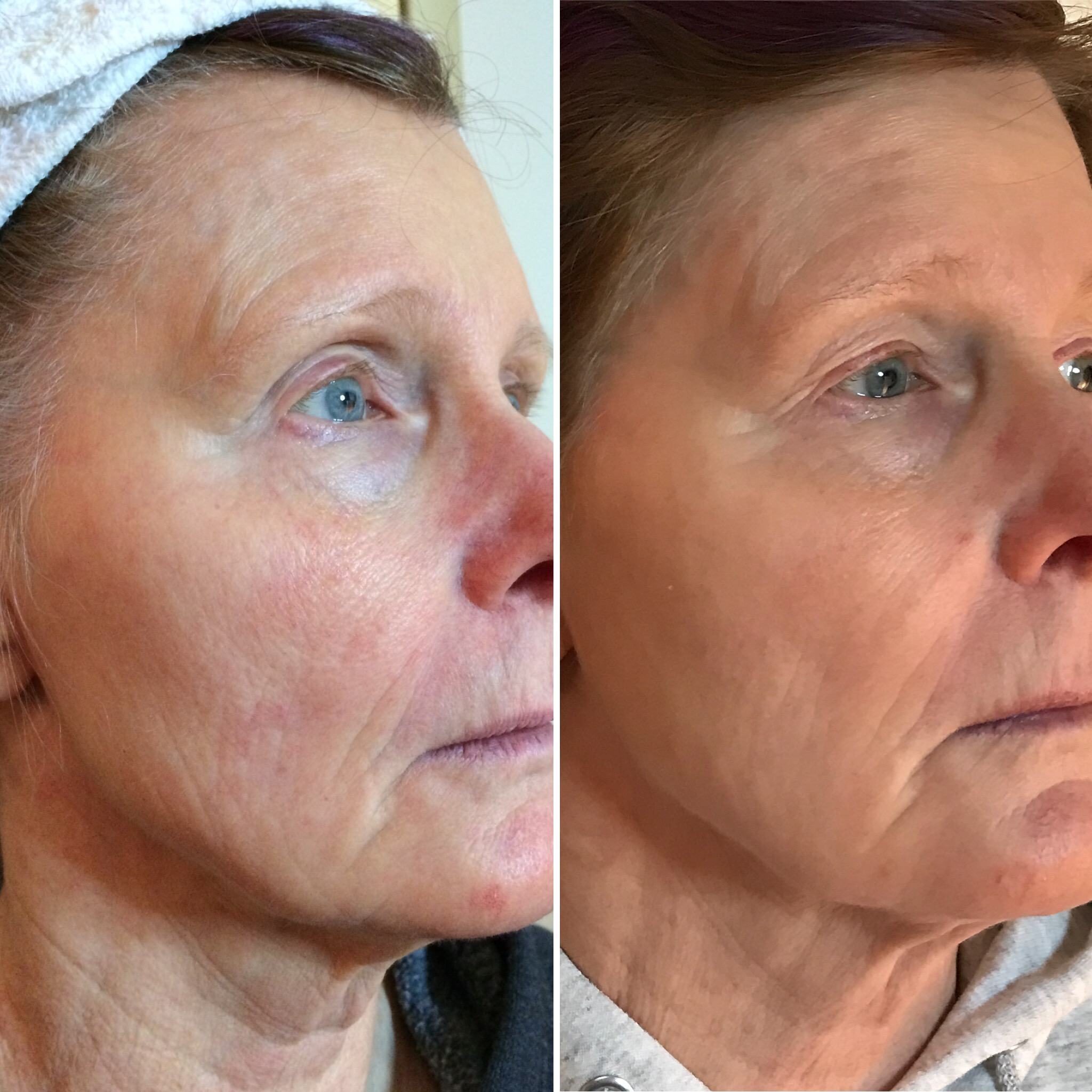 This client had over a year of TAMA treatments and diligent homecare with Osmosis and Roccoco Botanicals. Her skin barrier is repaired and healthier over all, and her face is more contoured.