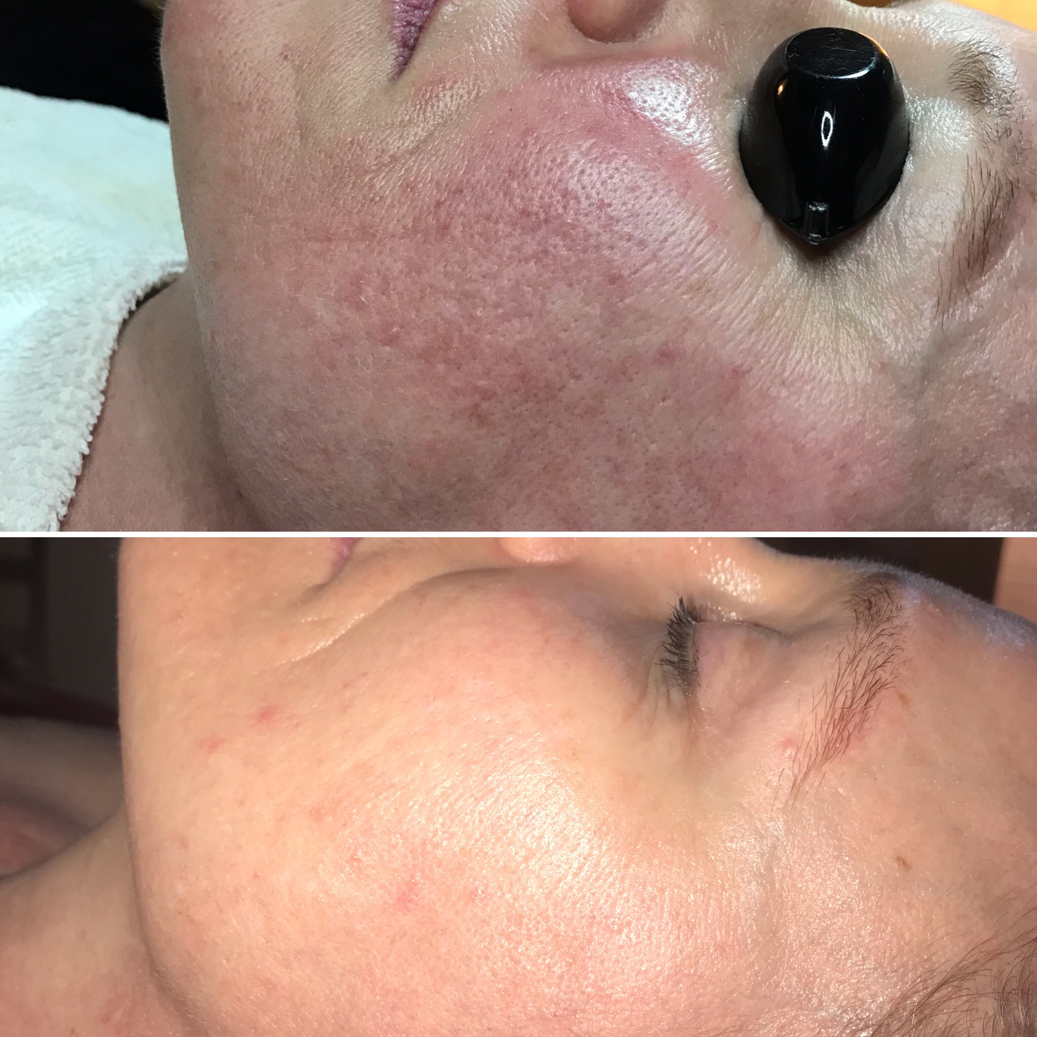 This client had dramatic improvement in only three weeks after one mini-facial and using Roccoco Botanicals homecare.