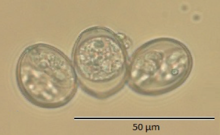 Figure 1. Coccidia extracted from hihi, a threatened passerine bird endemic to New Zealand. The coccidia on the left and right have undergone the process of sporulation and formed two sporocysts each containing the sporozoites, which are required to infect the next host. The coccidium in the centre has yet to sporulate.