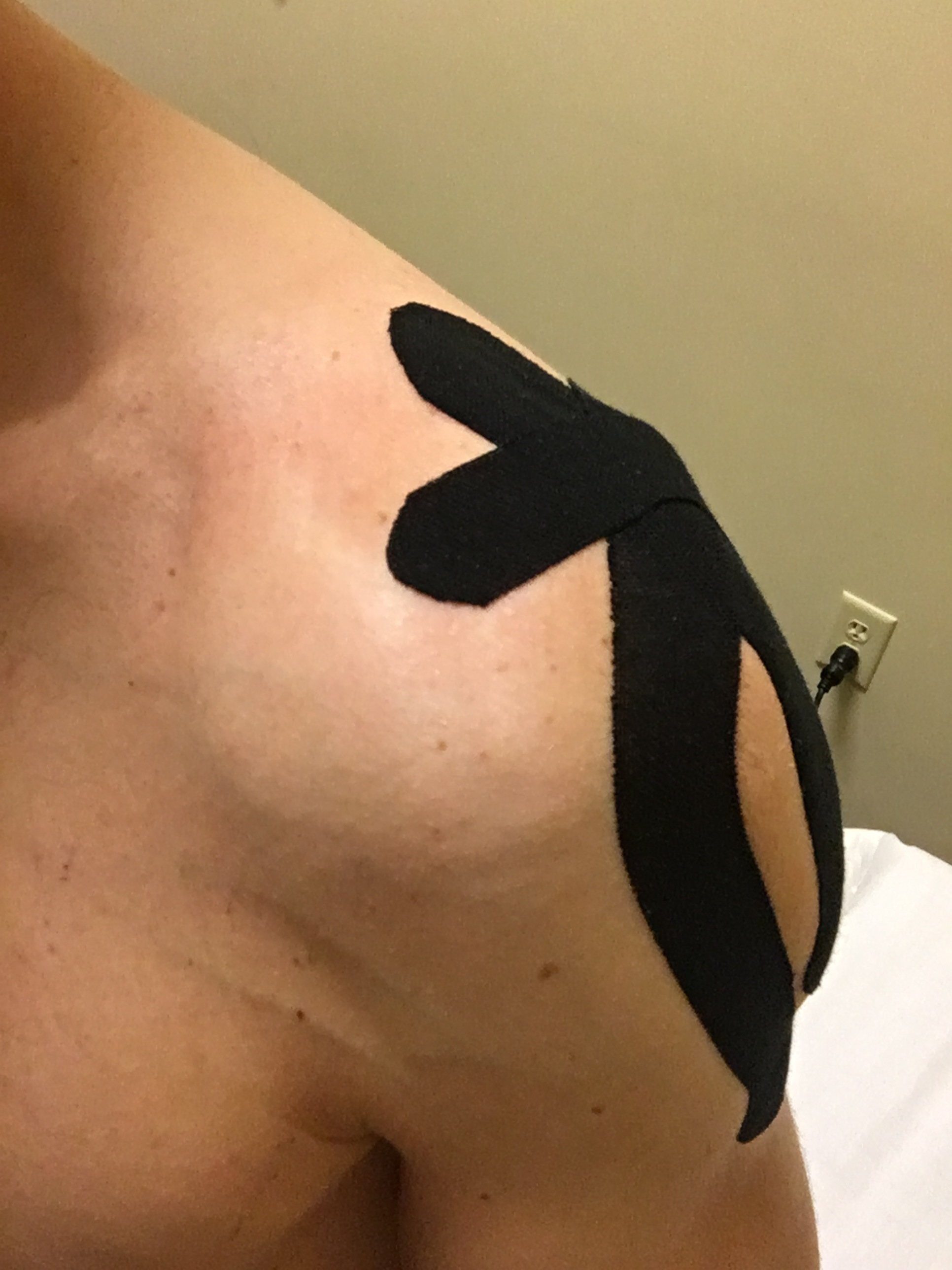 Kinesiotape to give a little support to the healing rotator cuff and GH ligaments. Thanks Darla and Josh for taping me everyday for a week.