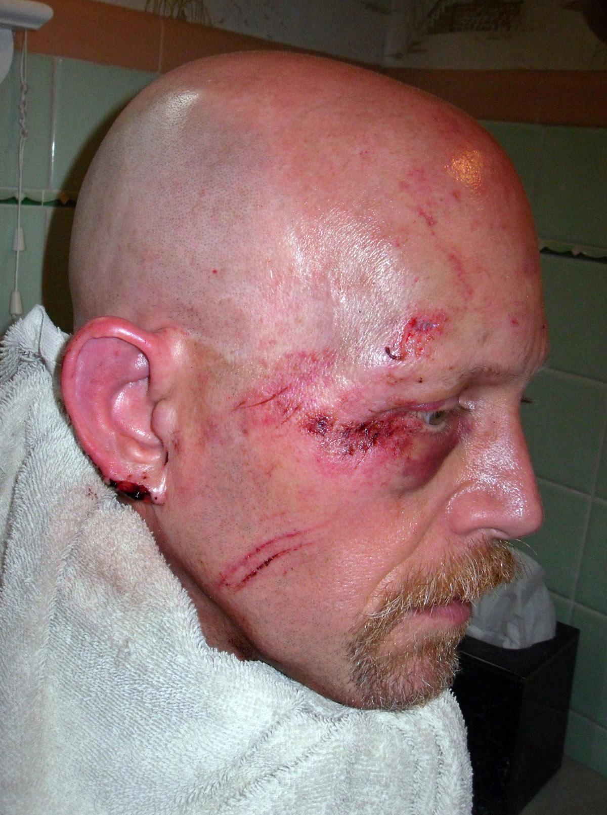 dave-kraus-injury.jpg