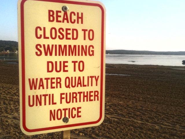 No swimming in St. Albans Bay, Vt., on Lake Champlain.  Lake Champlain International