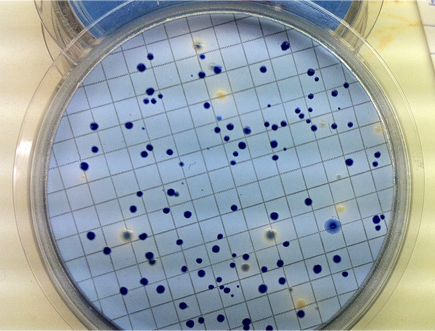 Fecal coliform colonies.  Clayton Manning/Project Seahorse