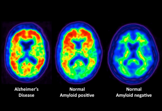 amyloid plaques in alzheimers disease