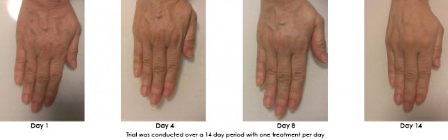 hand progression.jpg