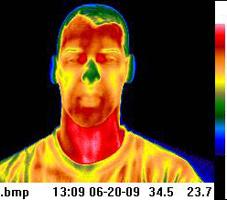 Teletermografia del volto  :   nella diagnosi differenziale fra le forme primarie e come strumento per seguire l'evoluzione della malattia. Da eseguirsi prima e dopo la terapia farmacologica