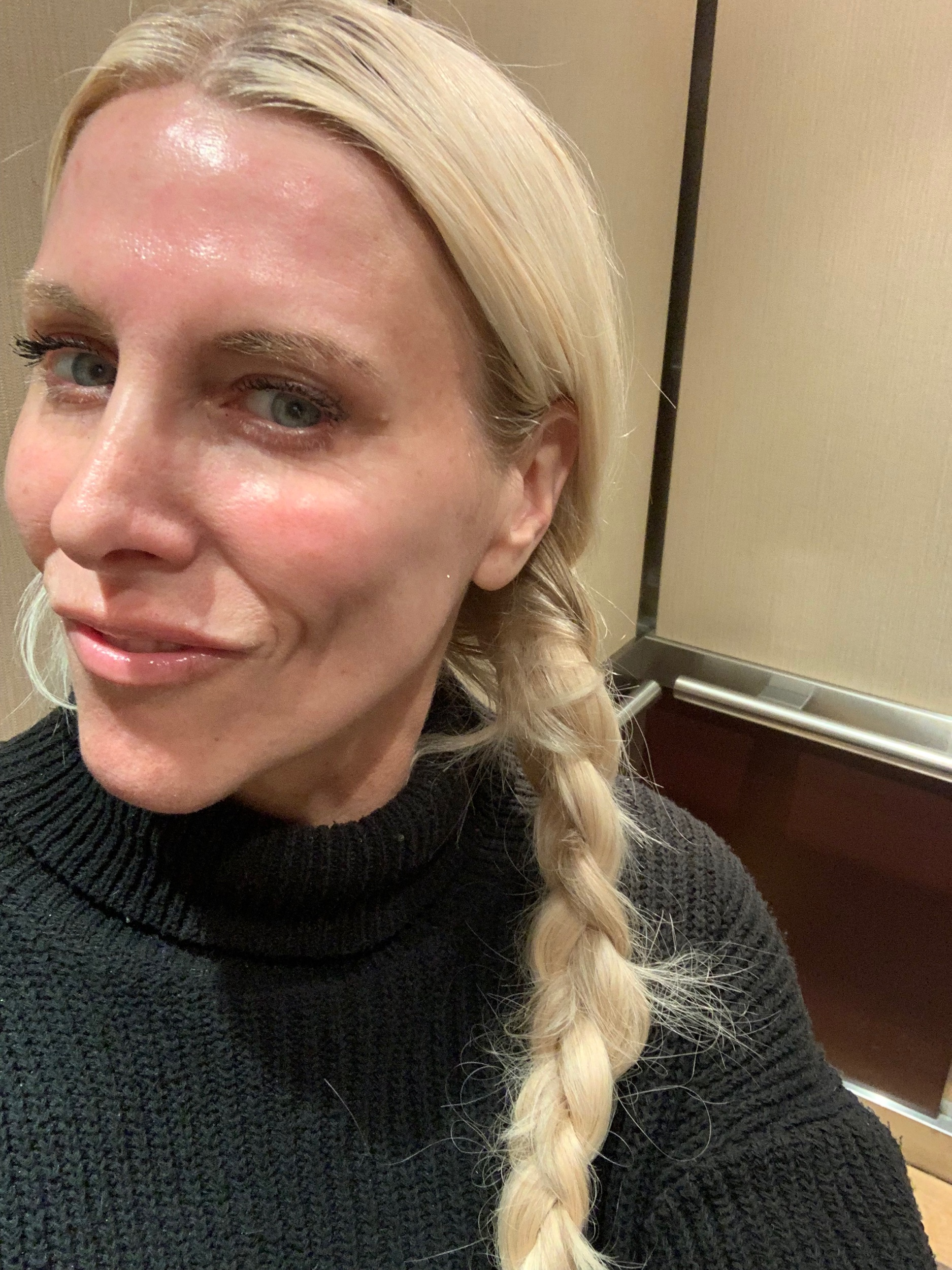 Okay, this is me in the elevator, immediately after all 3 lasers, no makeup, no filter, and only aloe-vera on my face because it feels like a slight sunburn. I was pink but only slightly and within a few hours, the hotness on my face went away!!