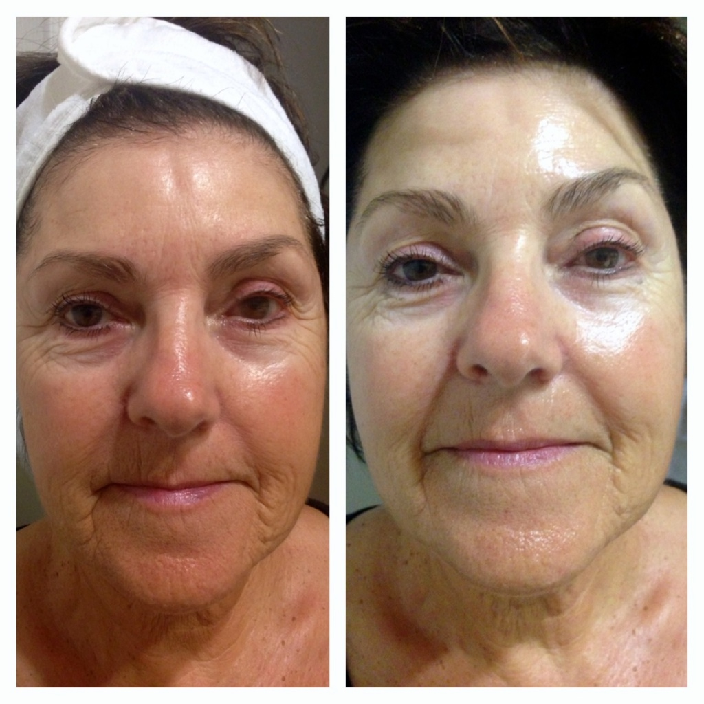 Before and After of Eyes and Chin after Microcurrent Facelift