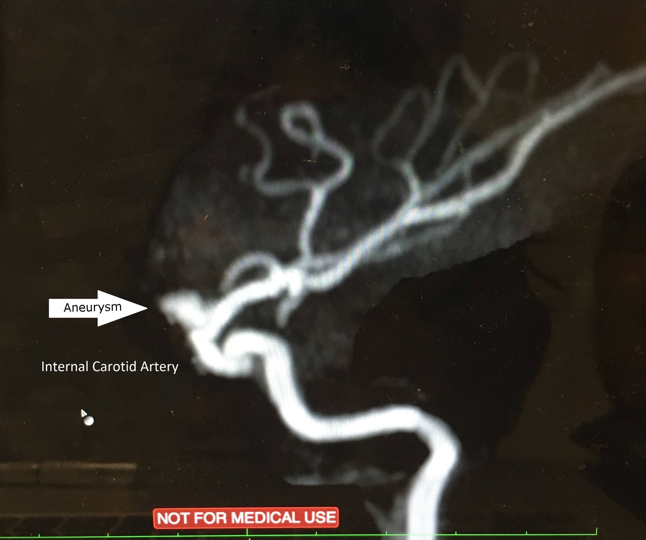 Say hello to my little friend, my aneurysm.