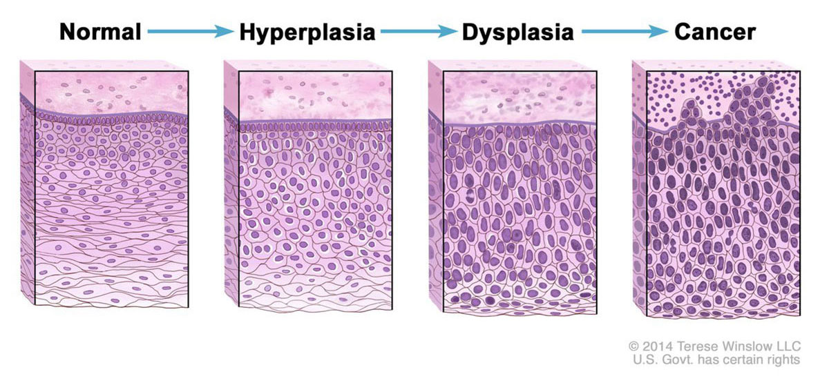 Normal cells may become cancer cells. Before cancer cells form in tissues of the body, the cells go through abnormal changes called hyperplasia and dysplasia. In hyperplasia, there is an increase in the number of cells in an organ or tissue that appear normal under a microscope. In dysplasia, the cells look abnormal under a microscope but are not cancer. Hyperplasia and dysplasia may or may not become cancer.