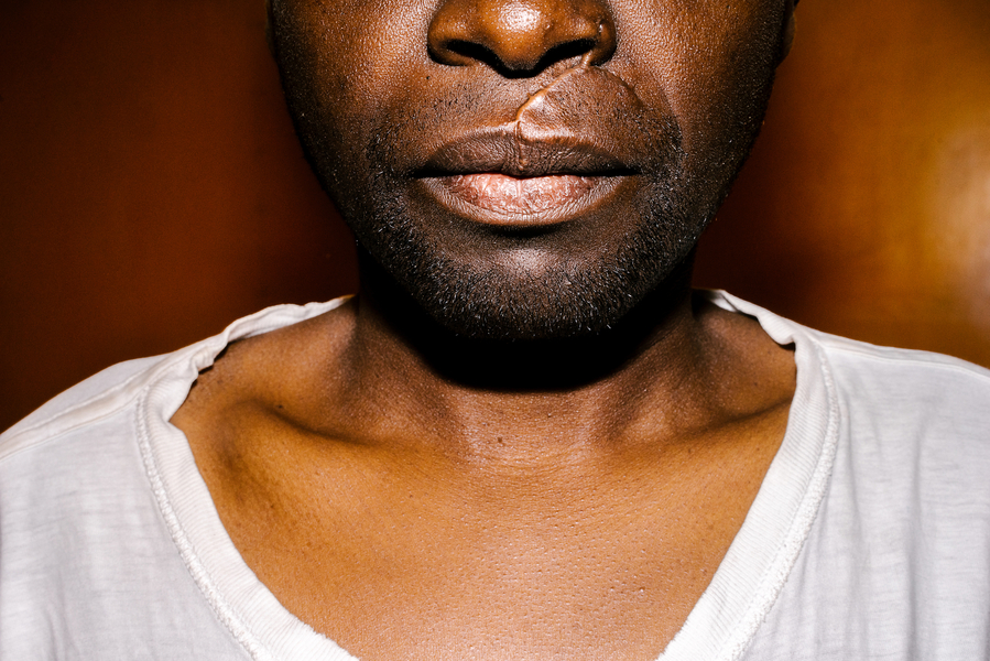 Soon after arriving in Kenya, S. was attacked by seven men with machetes. Here, he poses for a portrait in the apartment he shared with his boyfriend (though he has since moved), with one scar from the attack clearly visible. Others on his face and chest are not seen.