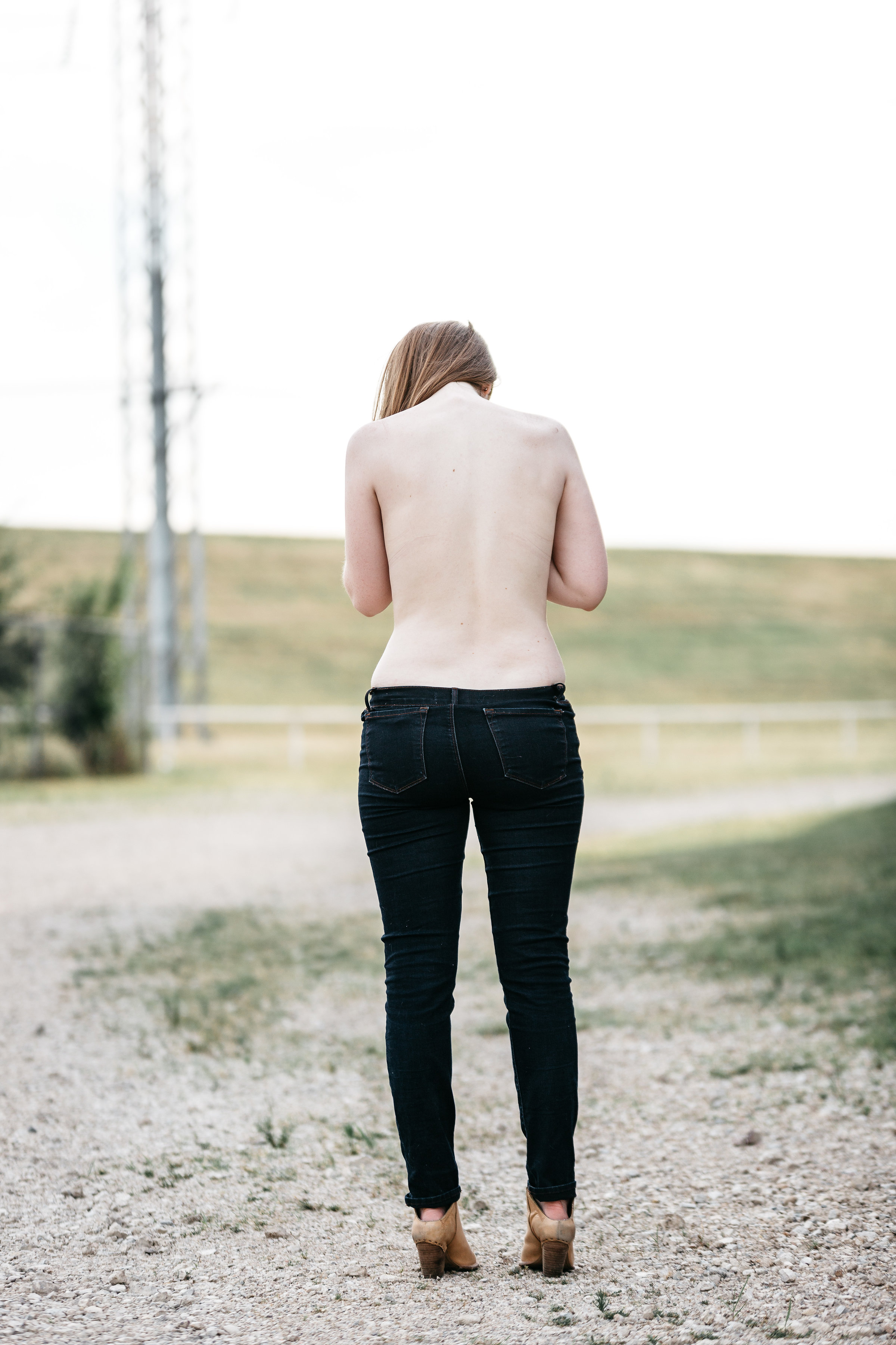 bent but not broken, lives affected by scoliosis, beckley photography, living with scoliosis, scoliosis statistics, dallas blogger, lments of style, how to help scoliosis